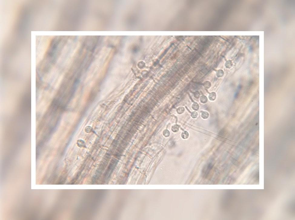 Researchers combine technologies to resolve plant pathogen genomes
